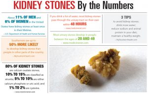 Kidney Stones by the Numbers