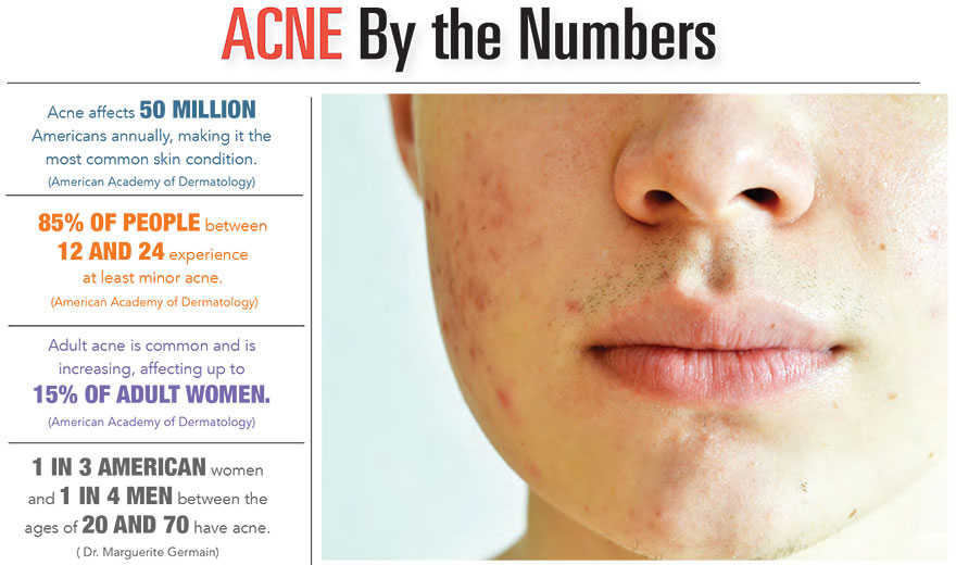 Acne by the Numbers