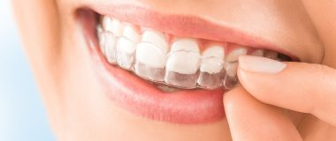 A Look at Braces