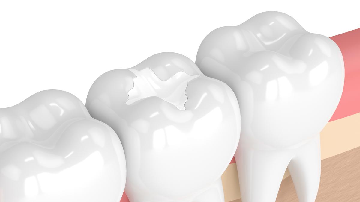Indigo Pediatric Preventive Dental Care