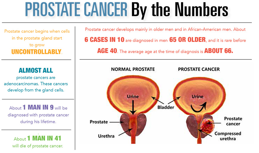 Prostate Cancer by the Numbers