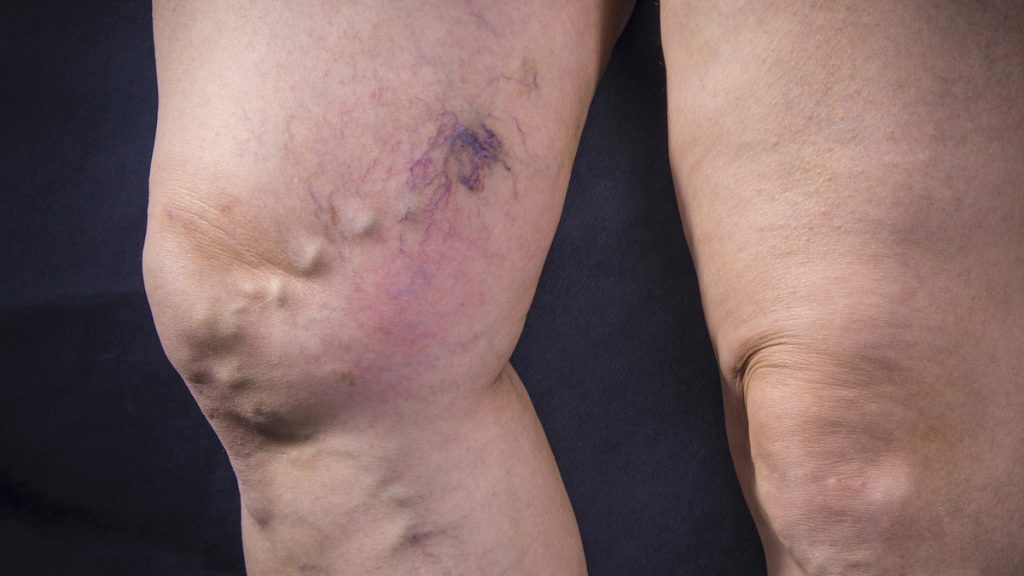 Legs with Venous Insufficiency