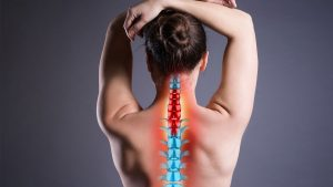 Graphic showing woman's spine