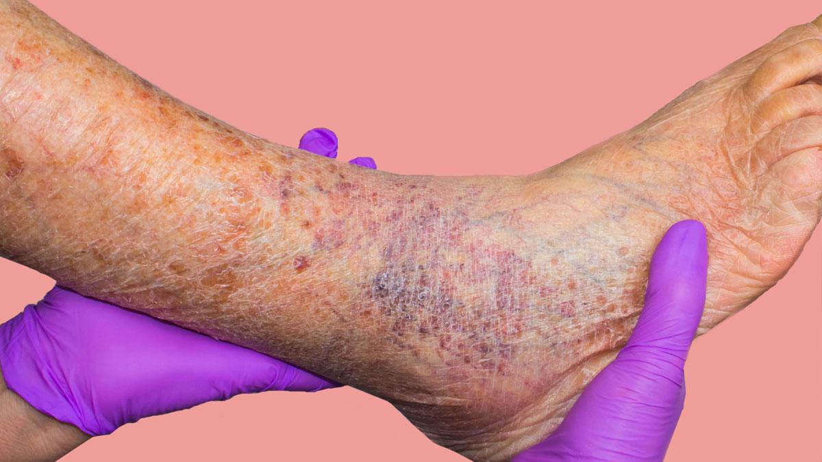Vein Disease Treatment