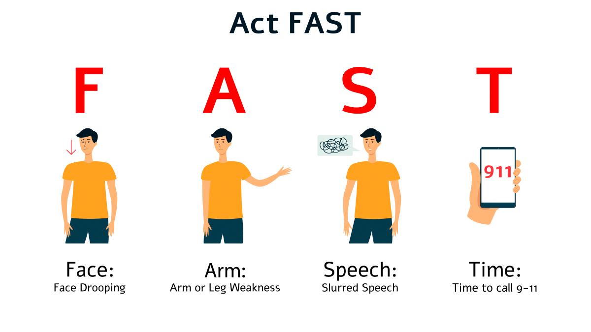 Graphic: Spot a Stroke F.A.S.T.