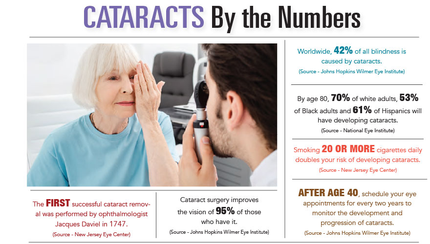 Cataracts by the Numbers