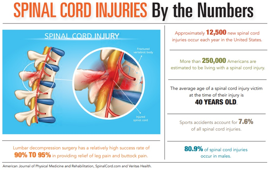 Spinal Cord Injuries by the Numbers