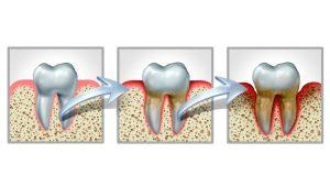 Graphic - Gum Disease